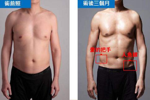 腰侧肌锻炼方法图解