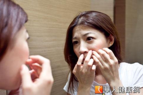 青春痘是常見的皮膚疾病,但若過度清潔或保養都可能導致病症惡化。(攝影/黃志文)
