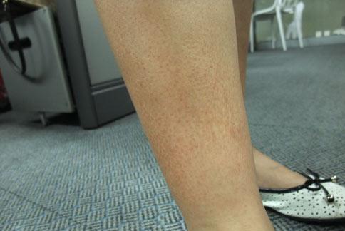 毛囊角質症患者的皮膚會出現紅色丘疹,症狀宛如雞皮疙瘩。(圖片提供/童綜合醫院)