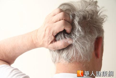 老人家因抵抗力較弱,如果有太多汗水刺激皮膚,便容易罹患脂漏性皮膚炎。
