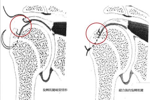 旋轉肌腱破裂示意圖。(圖片提供/台中澄清醫院)