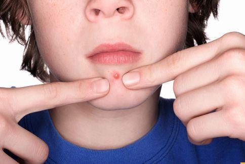 臉上突然冒出大痘痘,不知怎麼辦才好?從洗臉收斂調理,就能快速消除痘痘!