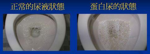 從尿液的泡沫情況,可判斷罹患腎病的可能性。(圖片提供/台中慈濟醫院)