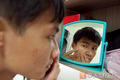 別手癢亂擠痘痘,透過飲食及作息改變體質才是根治痘痘膚質的方法。(圖片/華人健康網)