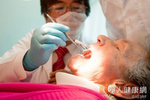 牙醫師指出,智齒年輕時拔,比老了再拔風險更低。