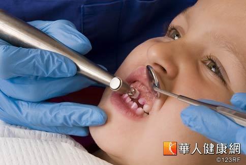 國人預防兒童蛀牙的觀念不足,導致5至6歲幼兒,超過7成都有蛀牙。