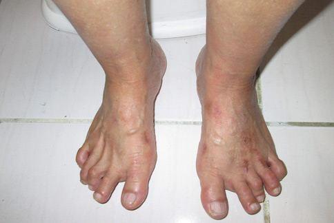 圖中患者的1名阿嬤,有中重度拇趾外翻的情況,還有其他部分軟組織纖維化孿縮的情形。(圖片提供/陳怡孜醫師)