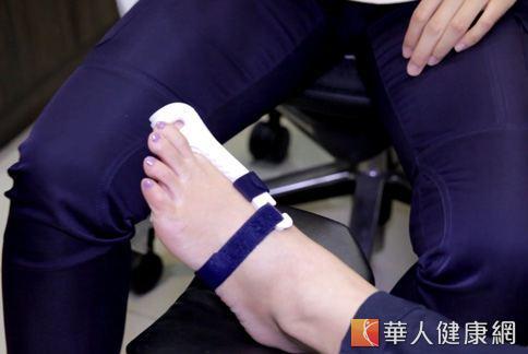輕度的患者其實大多不需要手術矯正,可以利用配帶輔助來做改善、矯正。(圖片/攝影記者楊伯康)