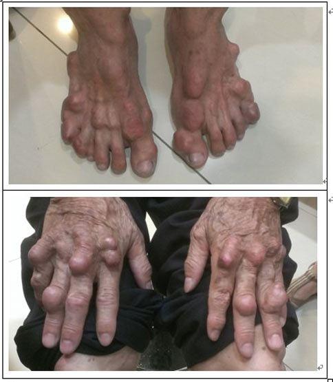 長期尿酸控制不良,不但會引起關節磨損變形、神經症狀、皮膚痛風石,甚至會造成腎臟功能減損。(圖片提供╱毛贊智醫師)