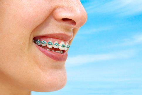 許多人誤以為忍耐2年「大鋼牙」的牙套生活,就能永久擺脫齒列紊亂的困擾。