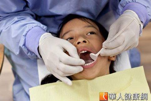 台灣學童蛀牙率高居世界之冠,不容小覷。(圖片/本站資料照片)