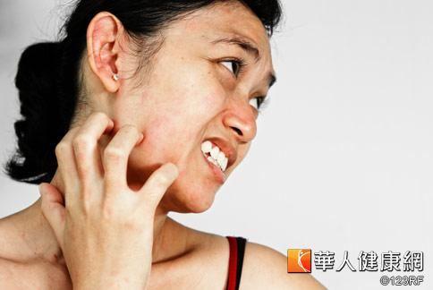 恙蟲病歸屬於第4類法定傳染病,常伴隨有發燒頭痛及皮膚局部癢。