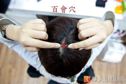 針灸百會穴,對於改善老年性失智症有緩解效果。(圖片/華人健康網資料照片)