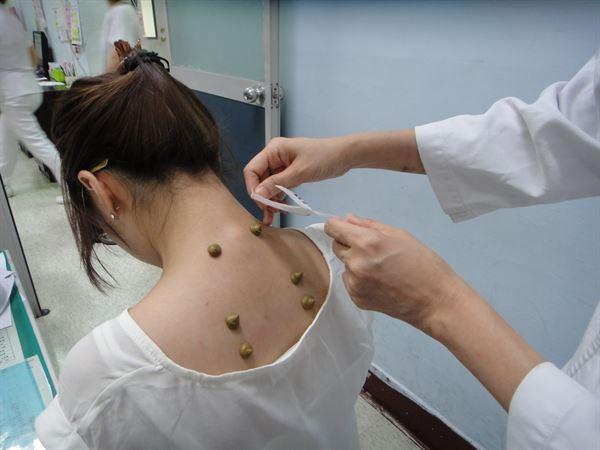 三伏貼便是將藥物貼在穴位上,透過皮膚的吸收達到治療和預防的作用。(圖片提供/衛福部台中醫院)