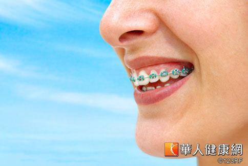 牙醫師建議,牙齒矯正前應先做牙周病檢測,以免矯正期間或矯正完成後,出現牙周組織病變,造成牙齒鬆搖的現象。