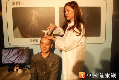 台北國泰醫院皮膚科醫師詹融怡表示,雄性禿患者最好持續治療一年。(攝影/黃曼瑩)