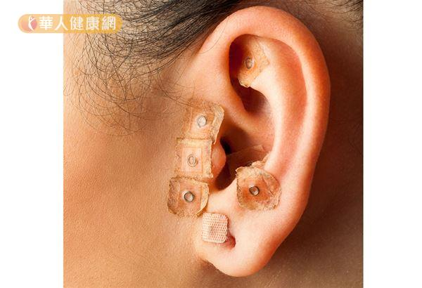 中醫師建議,也可採用耳針抑制食慾。