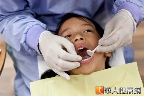 儿童牙齿涂氟保健社区